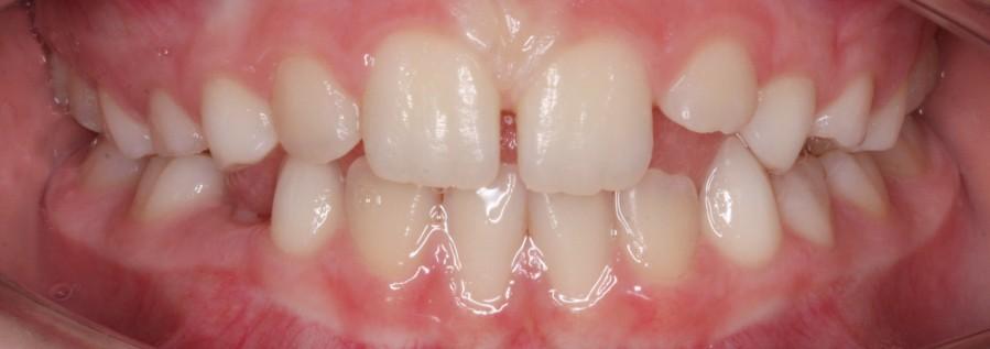 Nach der Behandlung mit Zahnspange für Kinder