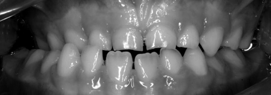 Vor der Behandlung mit Zahnspange für Kinder